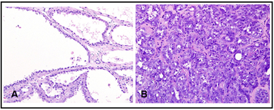 Figure 1. Tubulocystic renal cell carcinoma