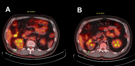 View Of 18f Fdg Pet Ct Findings Before And After Laparoscopic Cryoablation Of Small Renal Mass An Initial Report Journal Of Kidney Cancer And Vhl